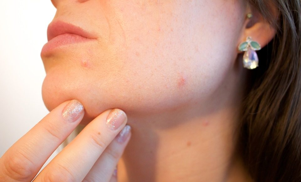 How can I prevent pimples on my face